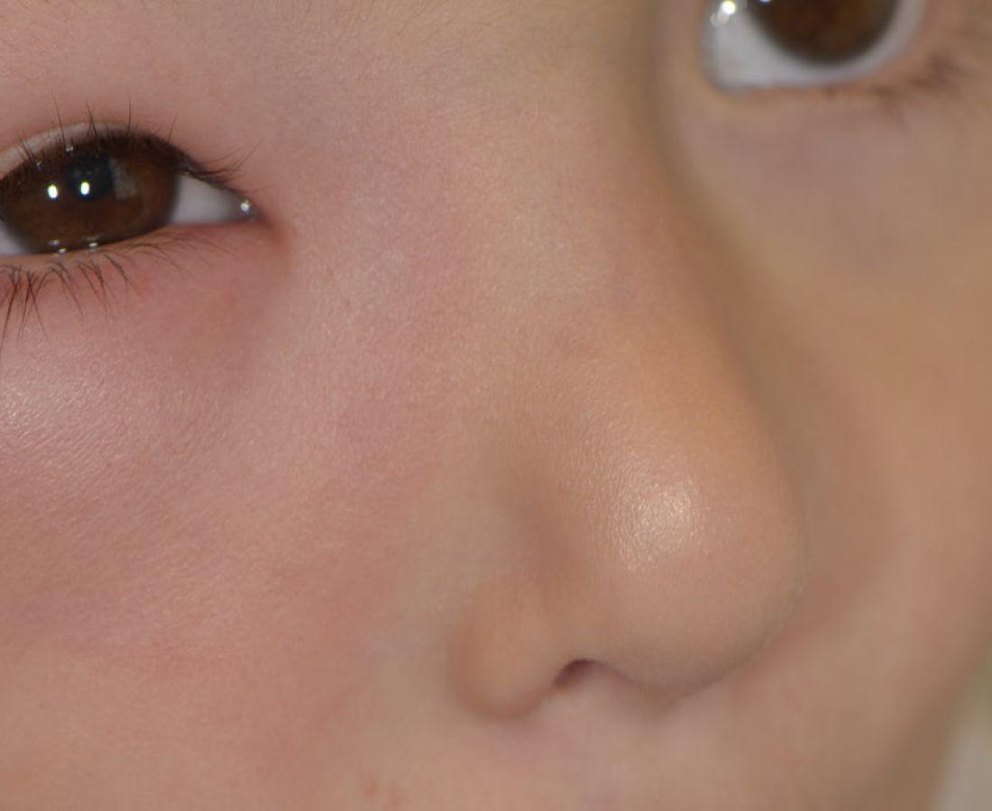 صور طبية – ألبوم صور  :  لسعة بعوضة على الوجه