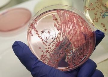 حالات عديدة للتسمم بجراثيم الليستريا في أمريكا