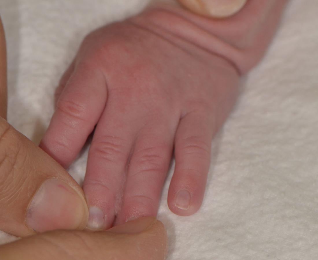 صور طبية – ألبوم صور  : التحام الأصابع