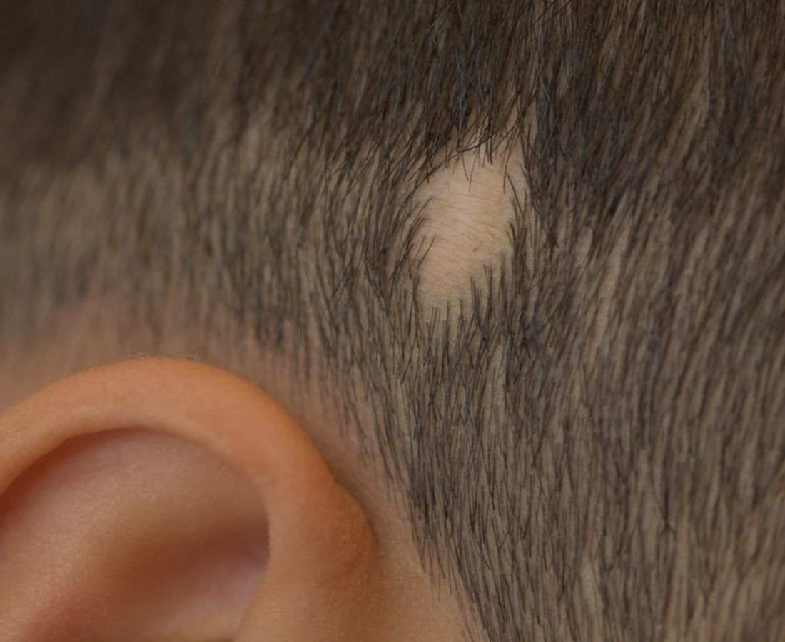 صور طبية – ألبوم صور  : ندبة على فروة الرأس