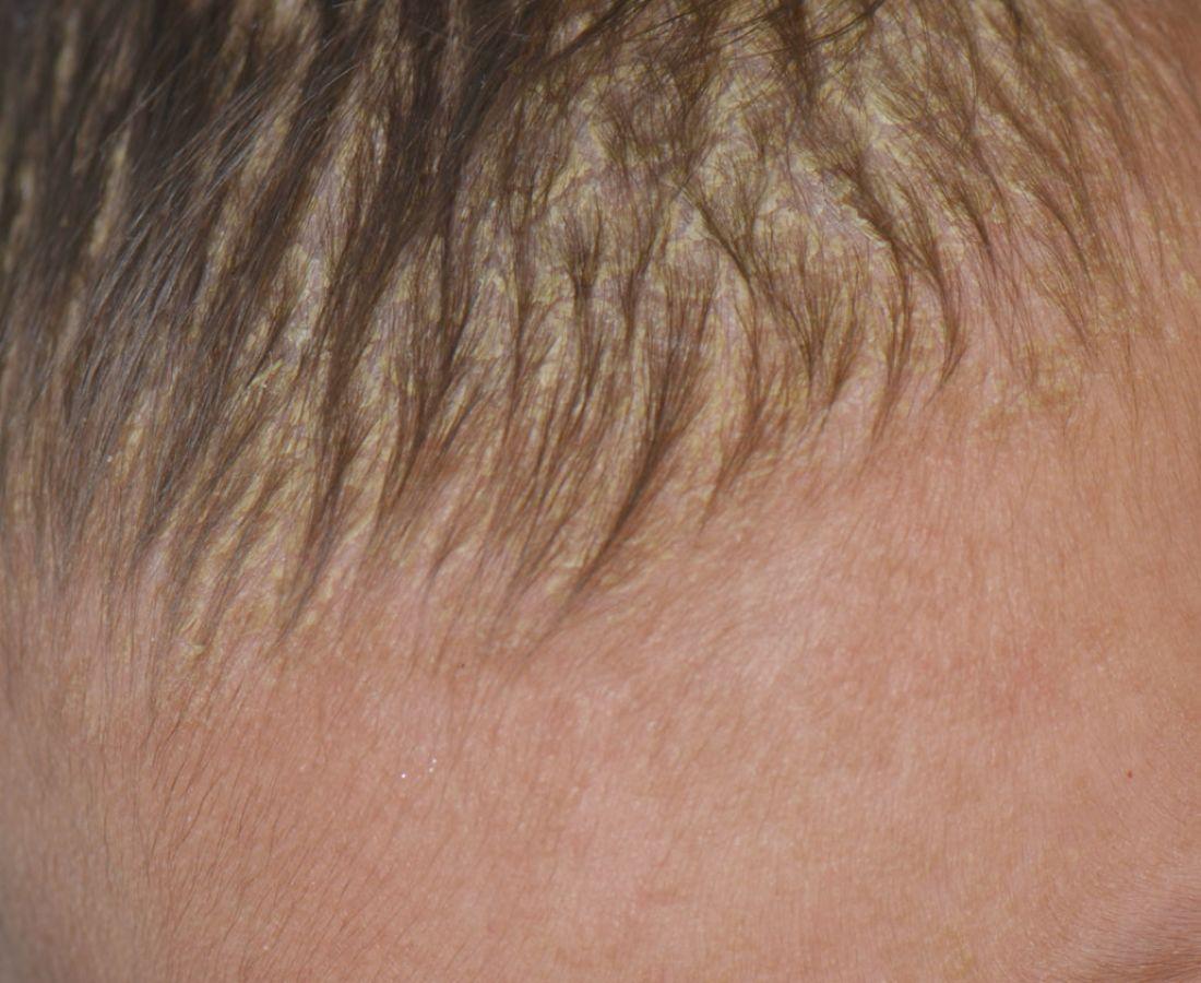 صور طبية – ألبوم صور  : التهاب الجلد الدهني2