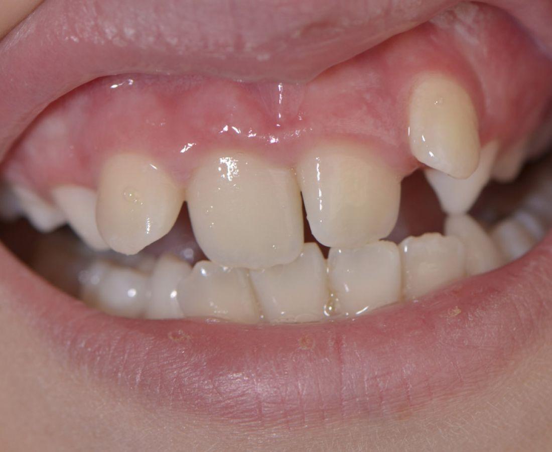 صور طبية – ألبوم صور  : تشوّهات الأسنان