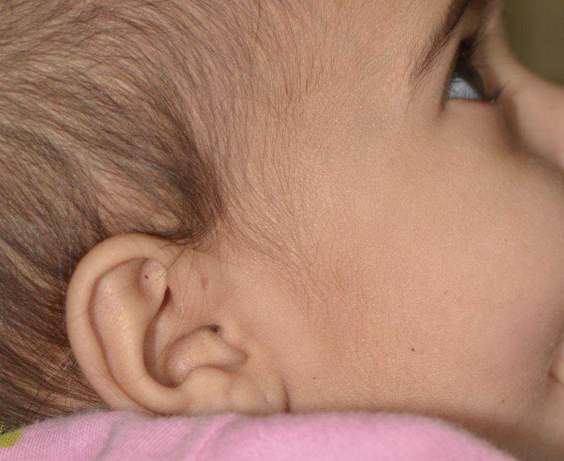 صور طبية – ألبوم صور  : النُّقرة أمام الأذن