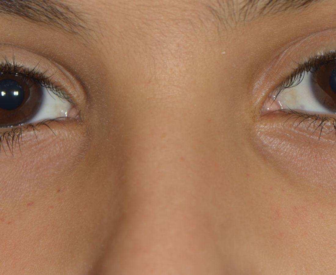 صور طبية – ألبوم صور  : نمشات على الوجه(3)