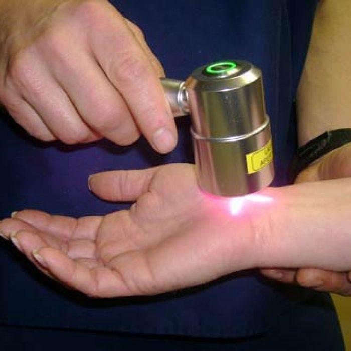 استخدامات واسعة لليزر في علاج أمراض الأطفال الجلدية
