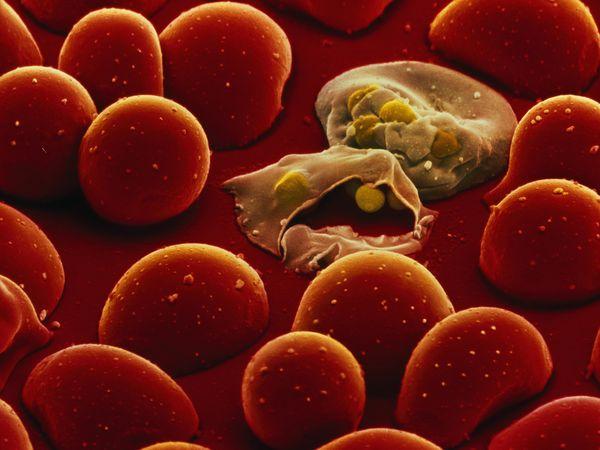 لقاح جديد للملاريا